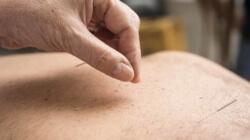 Saiba quais são os benefícios da acupuntura para a saúde